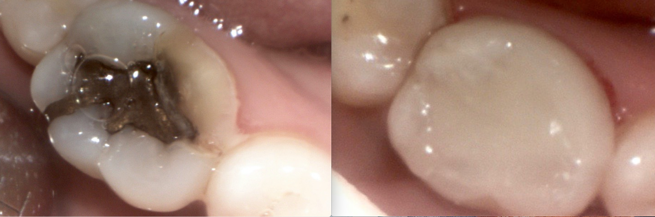 Can you believe these are the SAME TOOTH?! Wonderful results