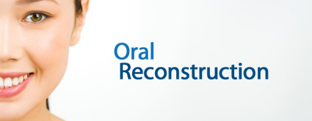 featured-oral-reconstruction-618x239.jpg