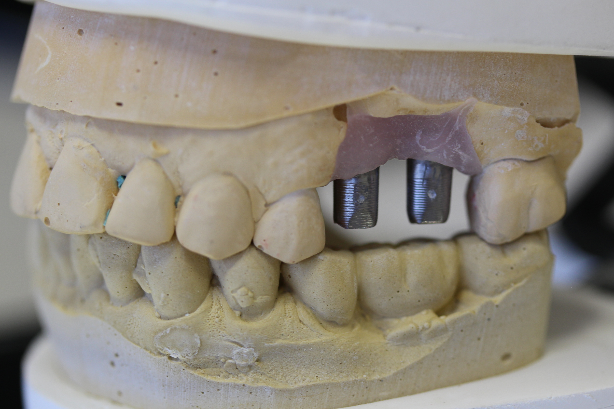 Model view of the abutments connected to the implants.