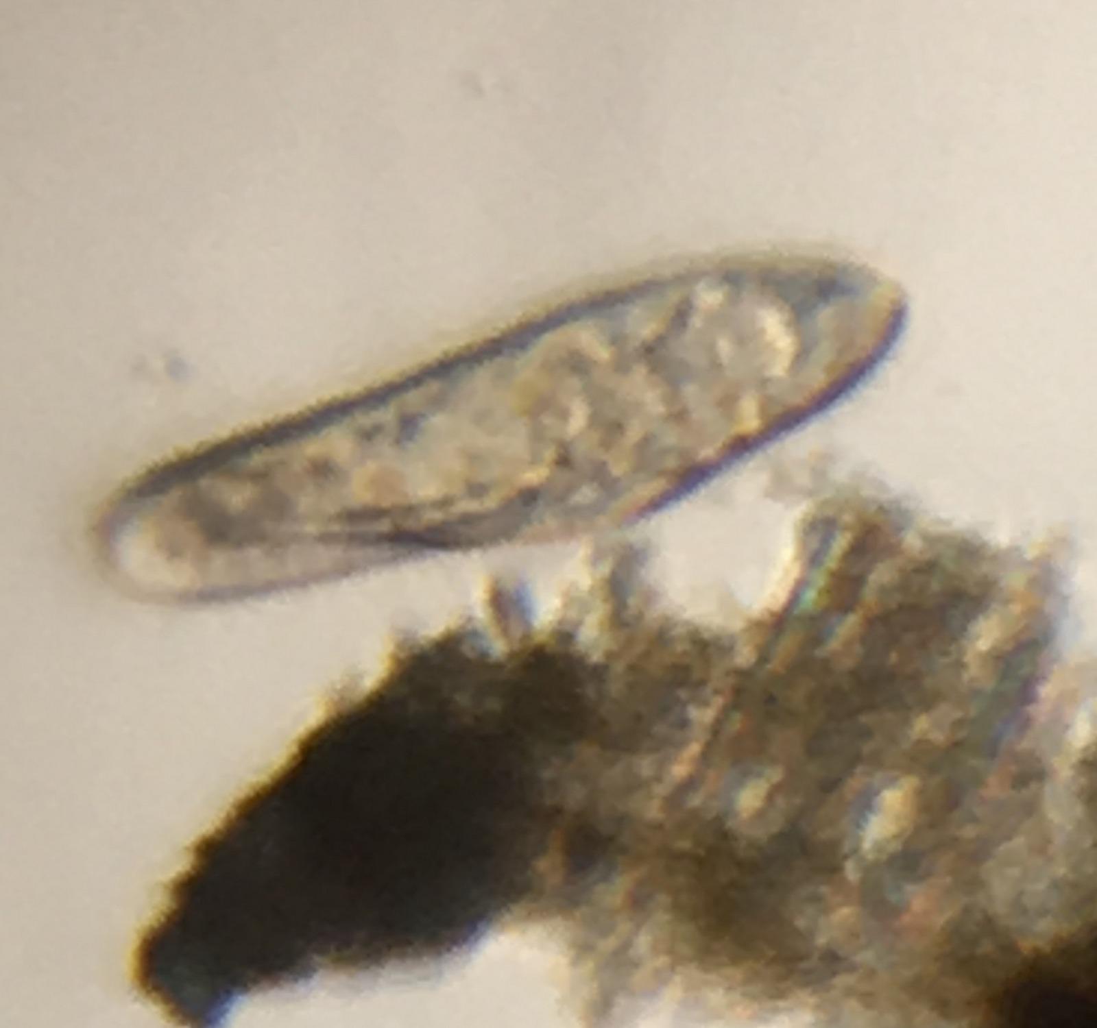 Ciliophora by Damon Tighe using Foldscope