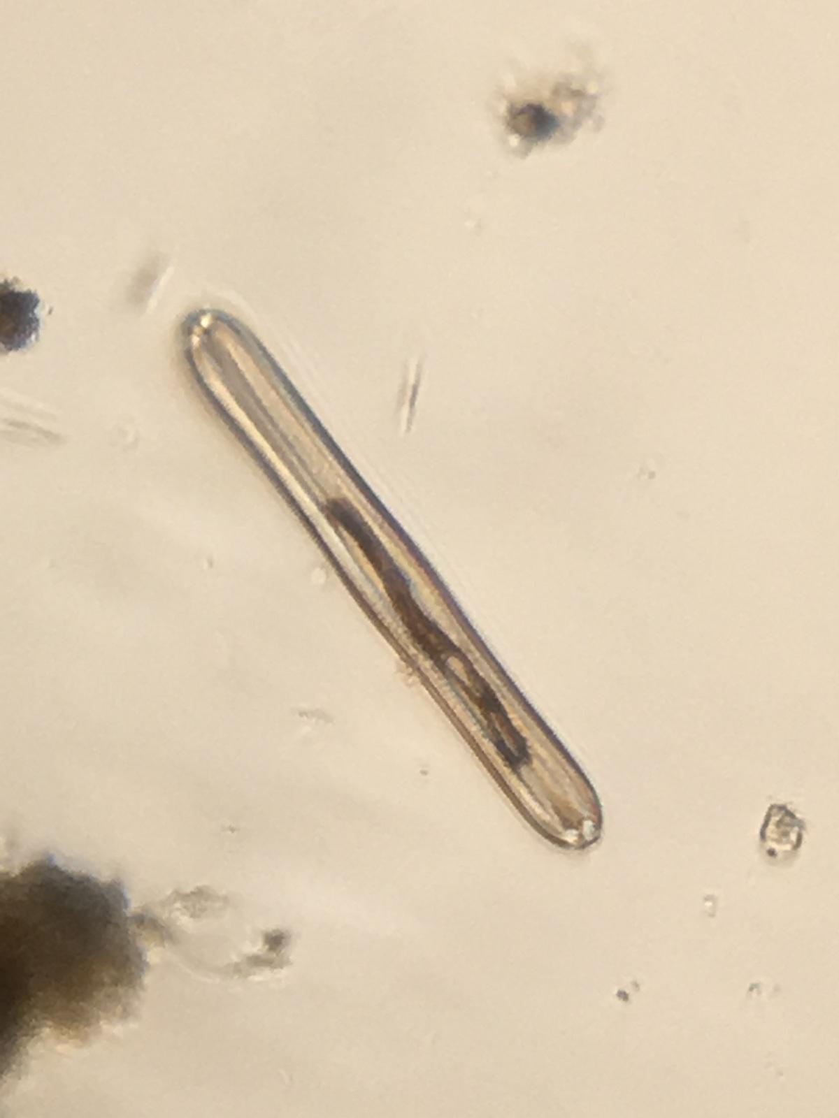Pinnularia diatom by Damon Tighe using Foldscope