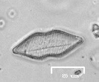 Diatom from Lake Merritt