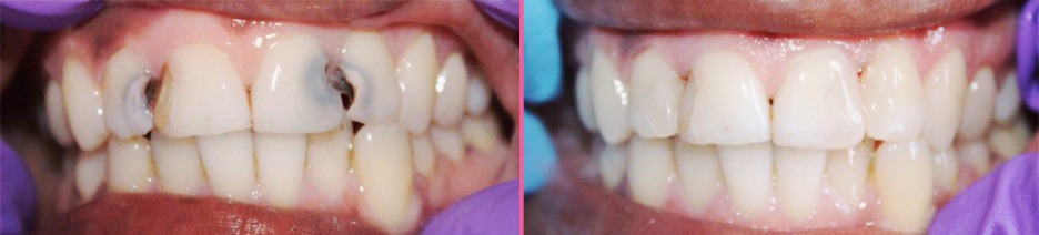 Interproximal Cavities, before and after Image from http://www.islesdental.com/