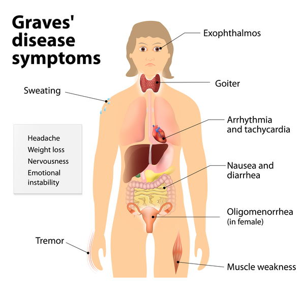 major-features-of-graves-disease.jpeg