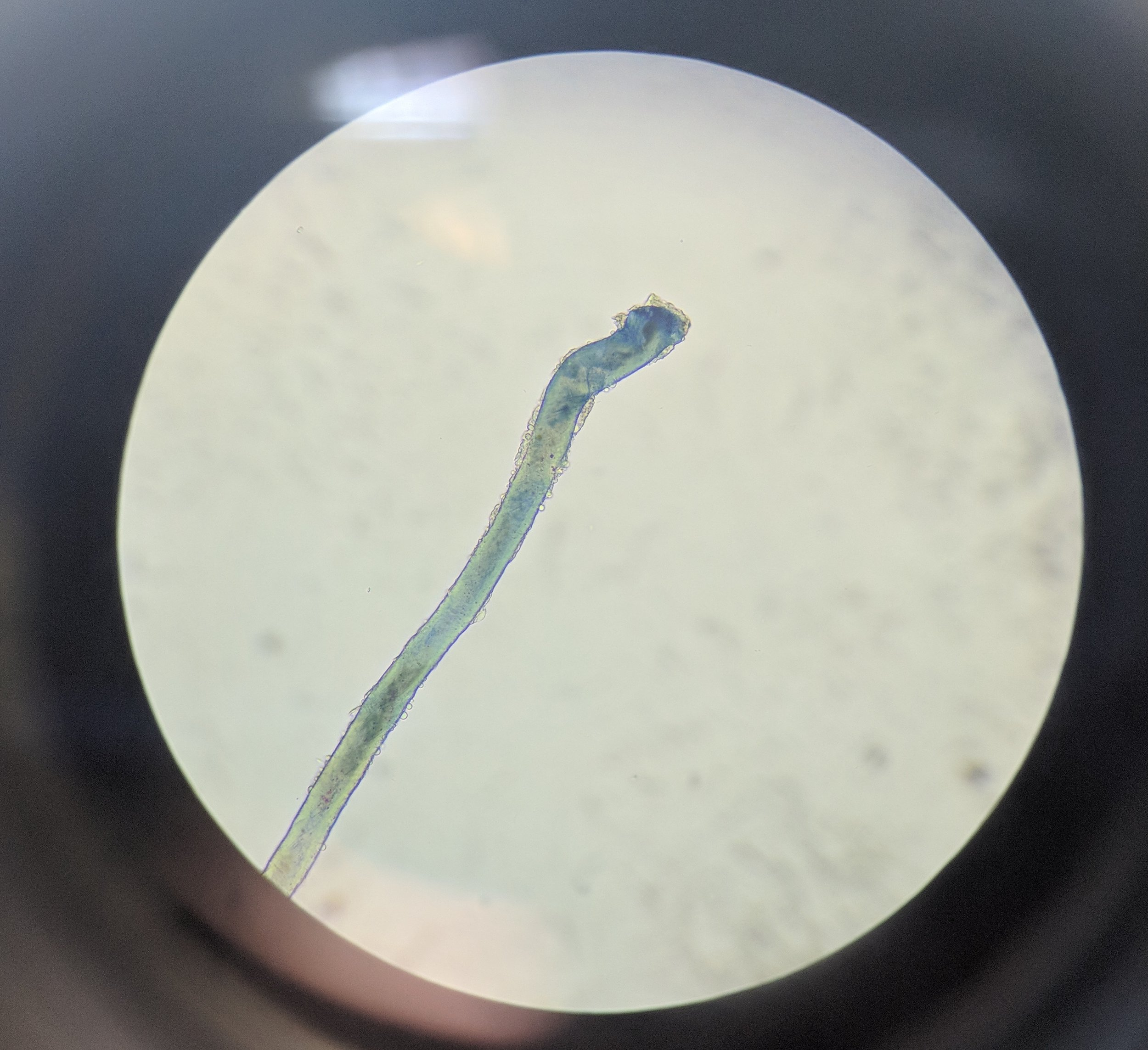 Microscope image of a microbe in a specimen collected from one of our engineered systems.