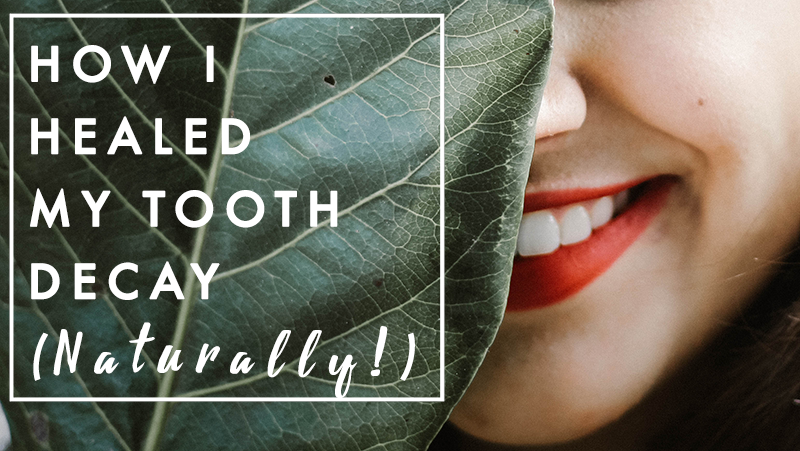 How I healed my tooth decay (naturally!) — Break Wild