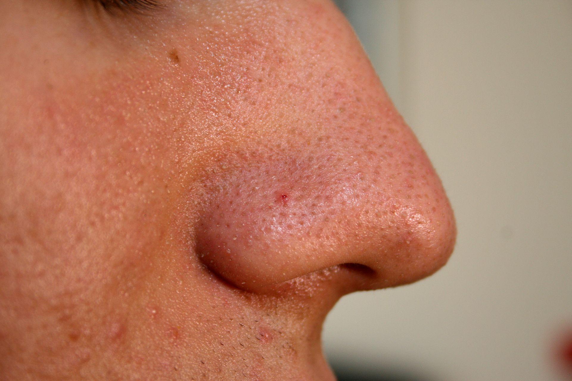 Nose with blackhead