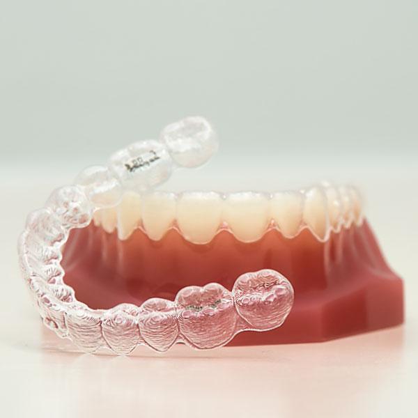jubilee-dental-invisalign-2.jpg