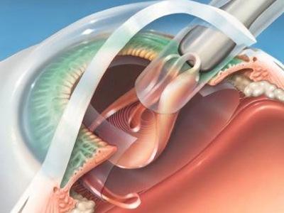 Intraocular lens in the eye
