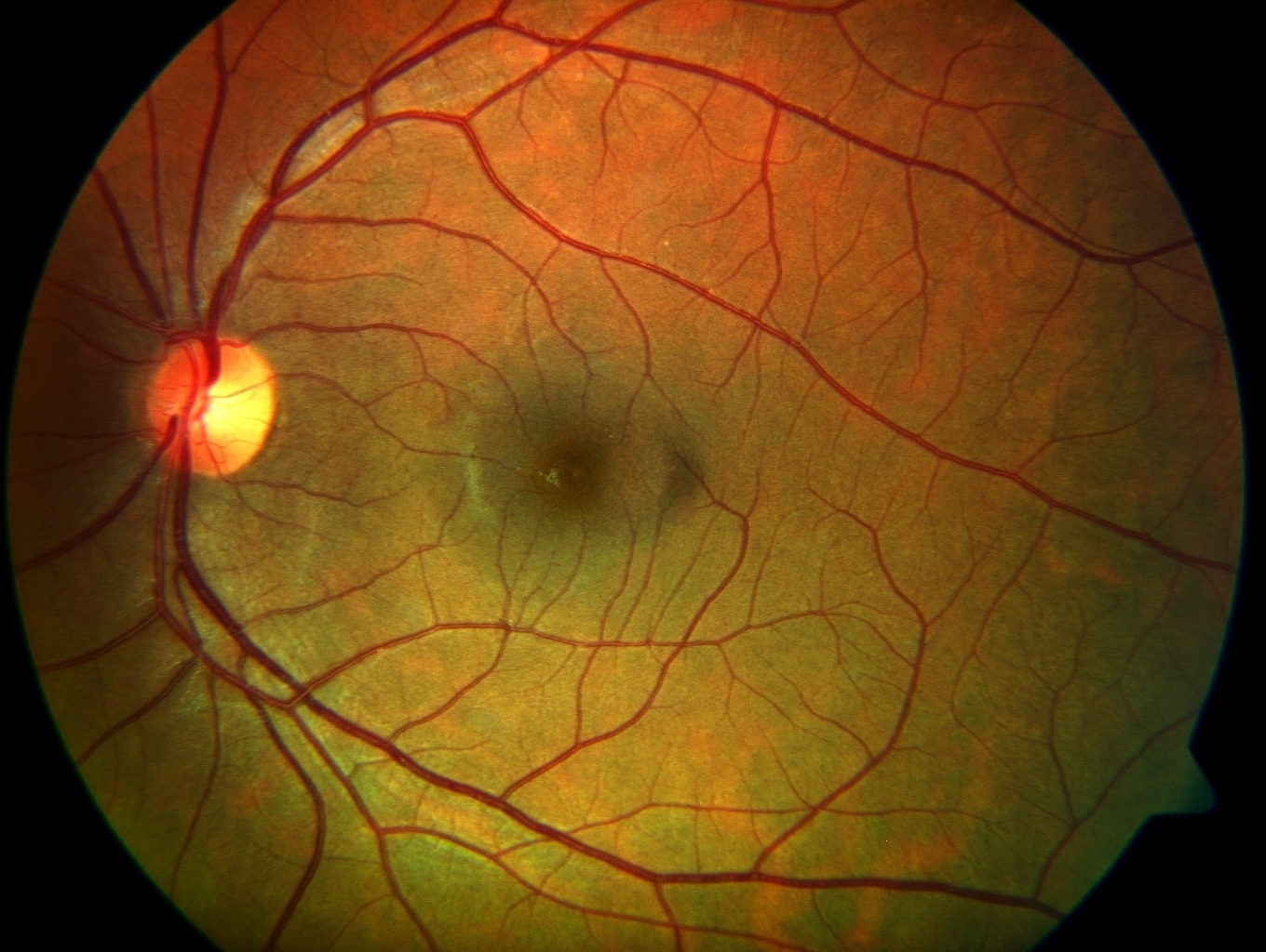FUNDUS PHOTO OF A NORMAL RETINA