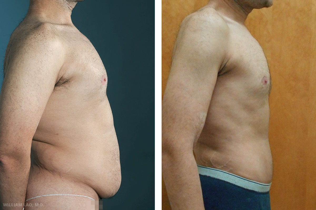 S, 36, Caucasian    S is a physician himself. He had gone through cycles of weight gain and weight loss in the past 10 years. This has caused him tremendous mental distress because of the body image he hoped to obtain. After considering all the surgical options and his current condition and goal, liposuction with abdominoplasty was done.     VIEW STORY