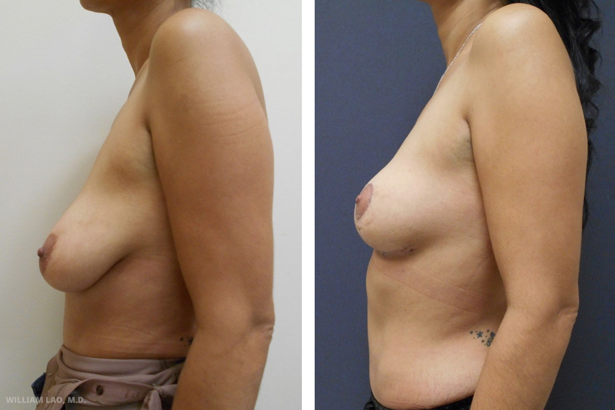 M, 41, Caucasian   M lost a lot of weight about one year ago through only diet and exercise. She is a mother of two and previously had an abdominoplasty to improve her body contour. She would like her breasts now to match the youthful appearance of her abdomen. After discussion, she did not want any implants so a breast lift procedure was done to lift the position of her nipple and gave her an overall fuller and less saggy breasts.    VIEW STORY