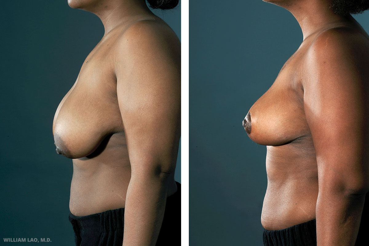 A, 26, TV Program Director, African American   A is a 26 year lady who suffered constant shoulder and neck strain from the large breasts she was given with. Most of her bra has to be custom made and she complains the lack of selection and design of those bra.Having done many homework in the past, she asked many good questions regarding details like reduction of areolar size, amount of weight she would like to lose, and the new cup size she would like to be.    VIEW STORY
