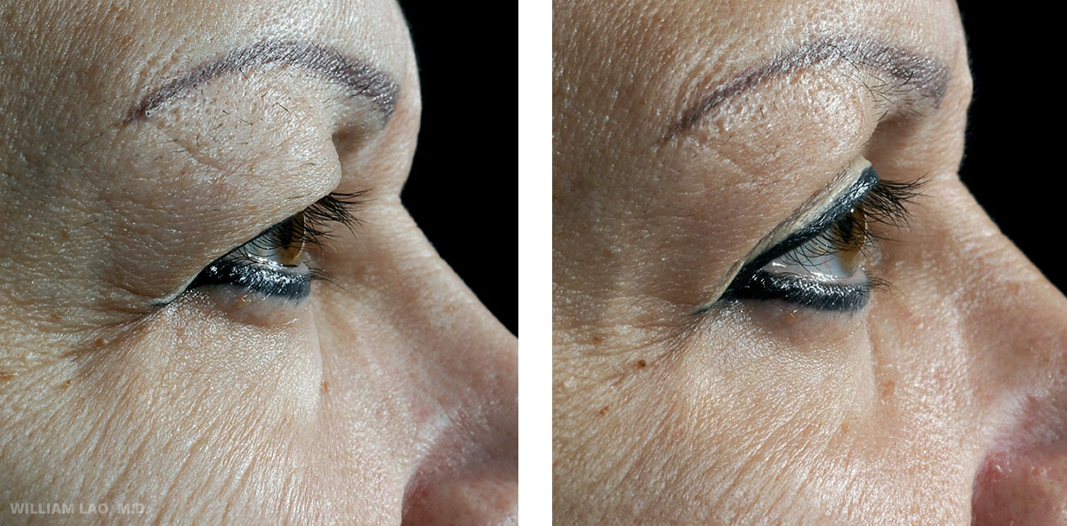 D, 57, Caucasian    D came in the clinic for desire for facial rejuvenation. She had a lot of excess skin dropping in the upper eyelid covering her eyes, sagging of the face and neck. Both upper and lower eyelid procedures were done at the same time with her face and neck lift.     VIEW STORY