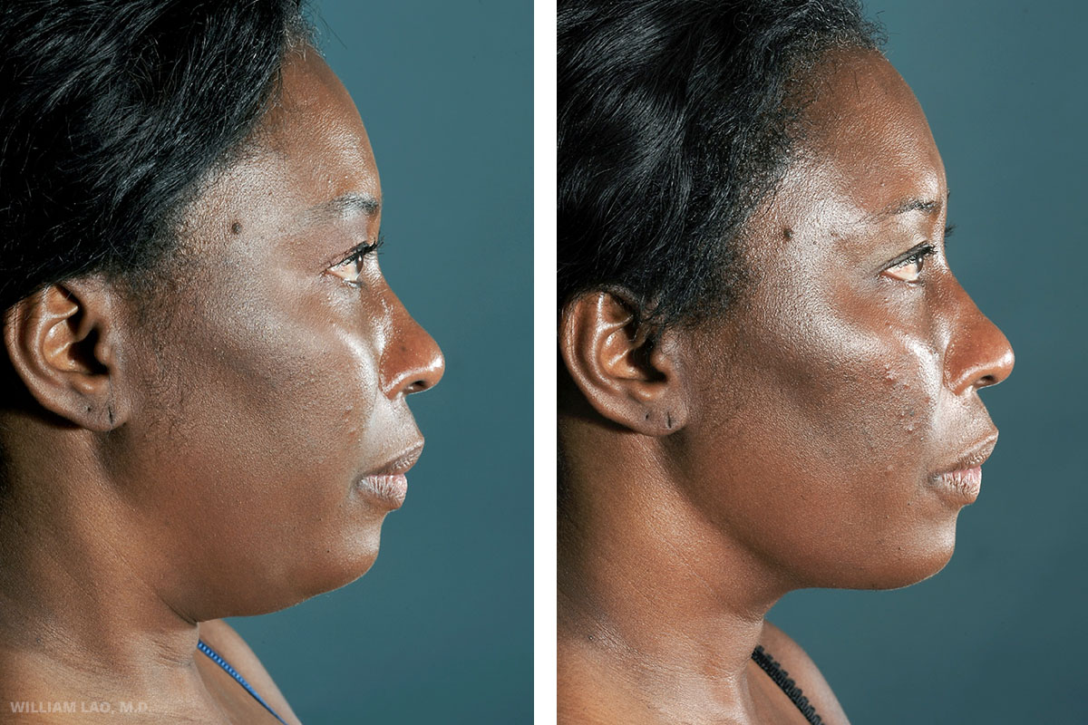 """D, 49, African American   D was a nurse who worked in the same hospital. She complained of her """"double chin"""" appearance. Necklift with liposuction was done to improve the overall contour of her neck and submental area.    VIEW STORY"""