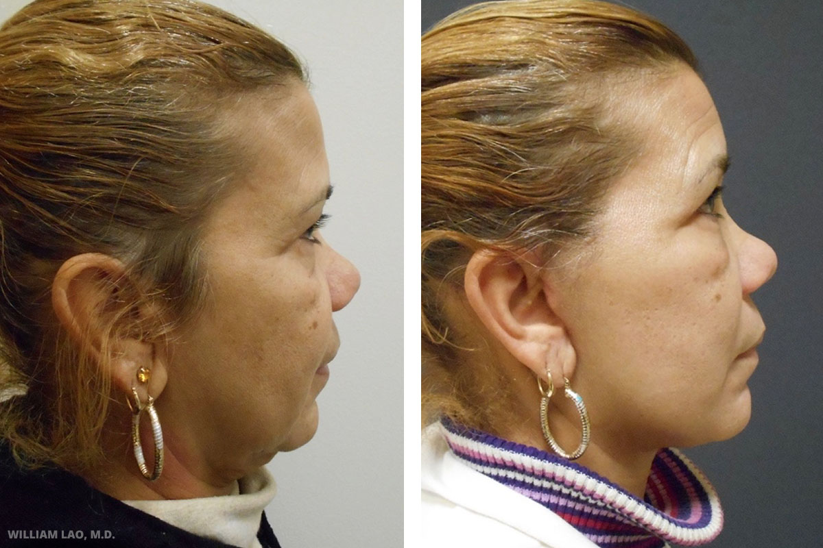 M, 64, Caucasian   M works as a nanny. She came in with chief complaint of the layered appearance of her neck. Face and neck lifts were done at the same time. Incisions were well hidden and she had a tremendous improvement in terms of her neck contour. Notice all the excess skin folds disappeared under her chin.    VIEW STORY