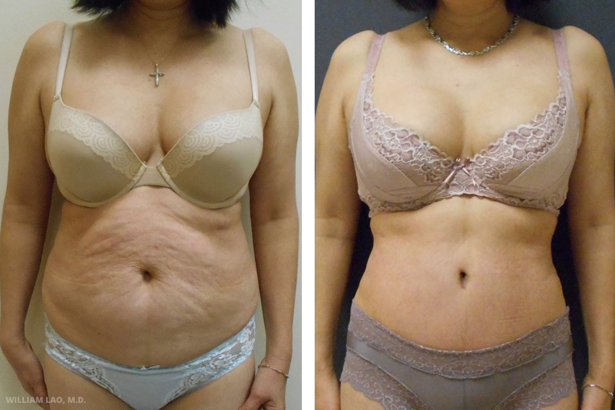 W, 62, Asian   W works as a nurse in New York. She moved to the USA from Taiwan many years ago. She came to me for desire of having a youthful abdomen body back. Her main complaint is the wrinkled abdomen and the lack of waistline curve.    VIEW STORY
