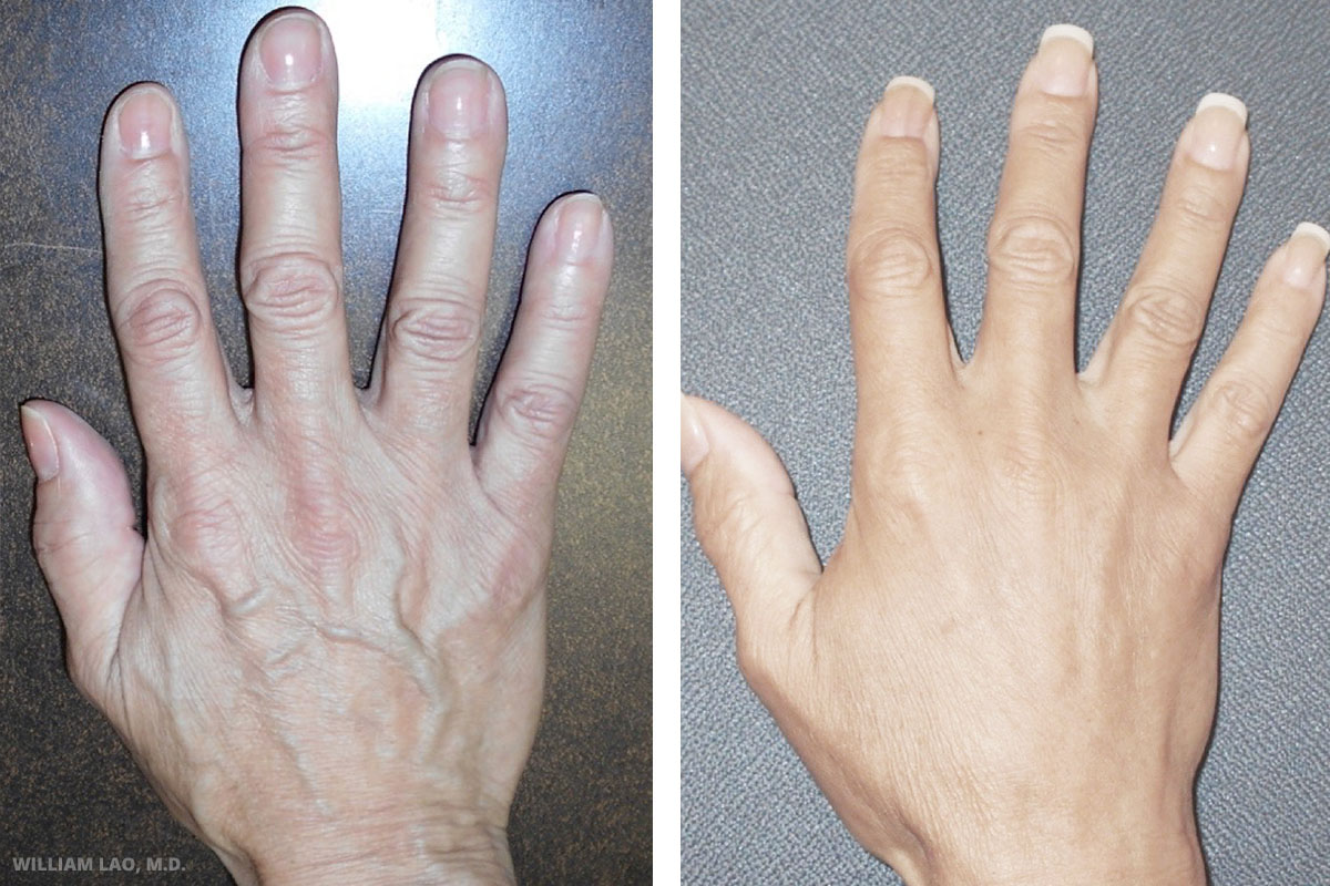 M, 59, Hispanic   M is a nice lady who came with a chief complaint of her hands. She complained that her hands prematurely aged, they looked older than her age and she felt very self-conscious every time she put her hands out to grab something or played cards with her friends. Specifically she did not like the prominent veins and the atrophic look. Fat liposuctioned from her belly was used to rejuvenate hand hands and feet, notice the less prominent veins and a fuller appearance of the hands after surgery.    VIEW STORY
