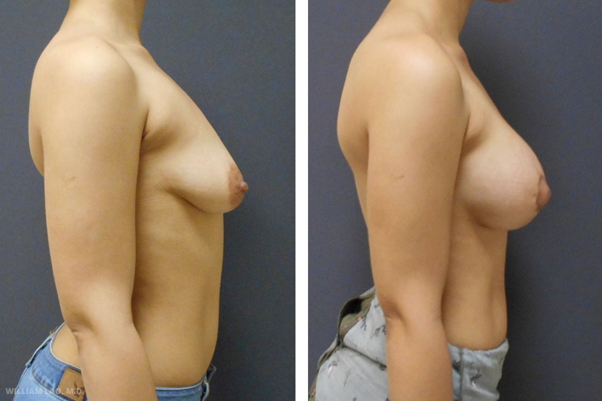 A, 29, Caucasian   A came to see me after previous consultation with other surgeons. She expressed her goal of a minimal incision breast lift and the desire of augmenting her breasts at the same time. After discussion, we reached a decision together of hiding all the incision around the areola while reducing its size and augmenting the breast through the same incision. She was extremely satisfied with the result and there was no visible incision on her breasts, even her husband could not tell where her incision was.    VIEW STORY