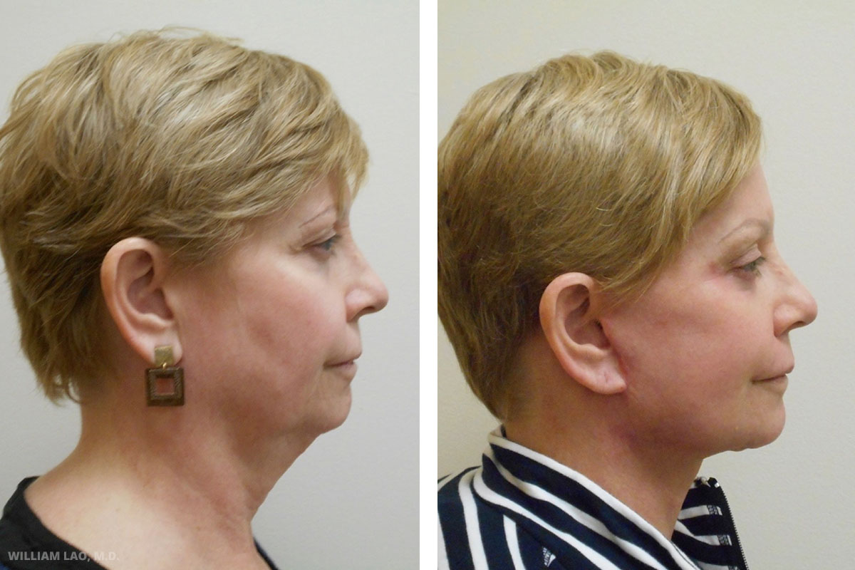 """V, 57, Caucasian   V wanted total facial rejuvenation to correct her droopy face and brow. She also emphasized the desire to get rid of her """"turkey neck"""". She was extremely pleased with her neck, she regained the youthful look she once had. Her friends believes she looked at least 10 years younger.    VIEW STORY"""