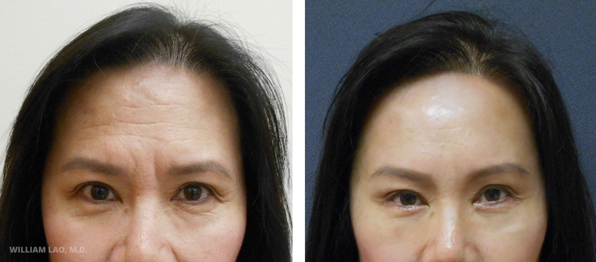 W, 62, Asian   W came in with concerns for her forehead and glabella wrinkles and the heavy appearance of her brow. After consultation, browlift with forehead lift were done to decrease the wrinkles. Lower blepharoplasty was also done at the same time to improve her eyebag appearance and remove the excess skin.    VIEW STORY