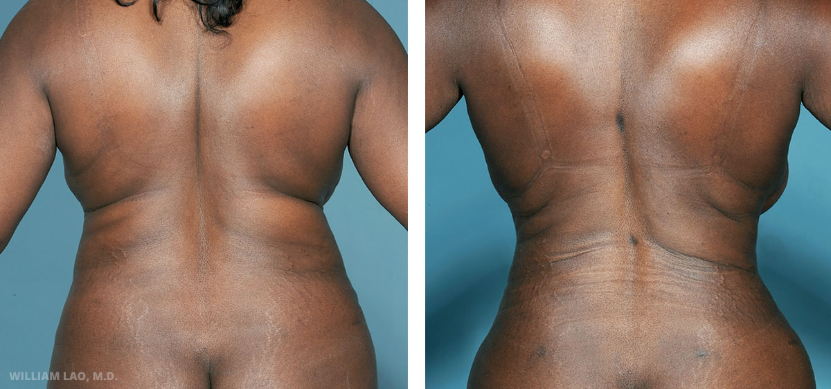 D, 49,Nurse, African American   D previously had an abdominoplasty done in an outside hospital, however she was not satisfied with the overall curve of her body. She preferred an exaggerated hip with a smaller waist. Liposuction was done to accentuate that look. Notice the gain in that hour glass shape before and after surgery.    VIEW STORY