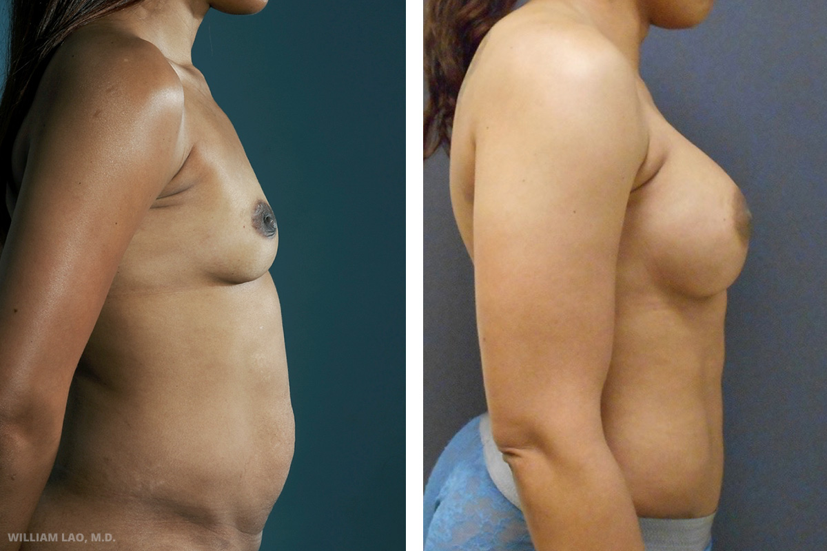 M, 35, Hispanic   M is a social worker in the hospital. She came for breast augmentation and she wanted the least visible scar possible. After discussion, augmentation through her areola was done to give her a desired C cup.    VIEW STORY