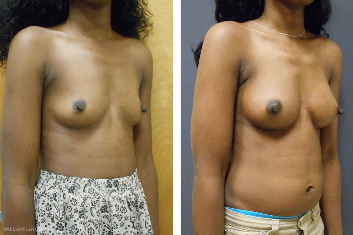 D, 30, African American   D always wanted bigger breasts since young. She was very flat chested and underwent a breast augmentation one year ago. She now wants to upgrade from a B cup to a C cup. Implant exchange was done through her old incision and she was happy with size afterwards.    VIEW STORY
