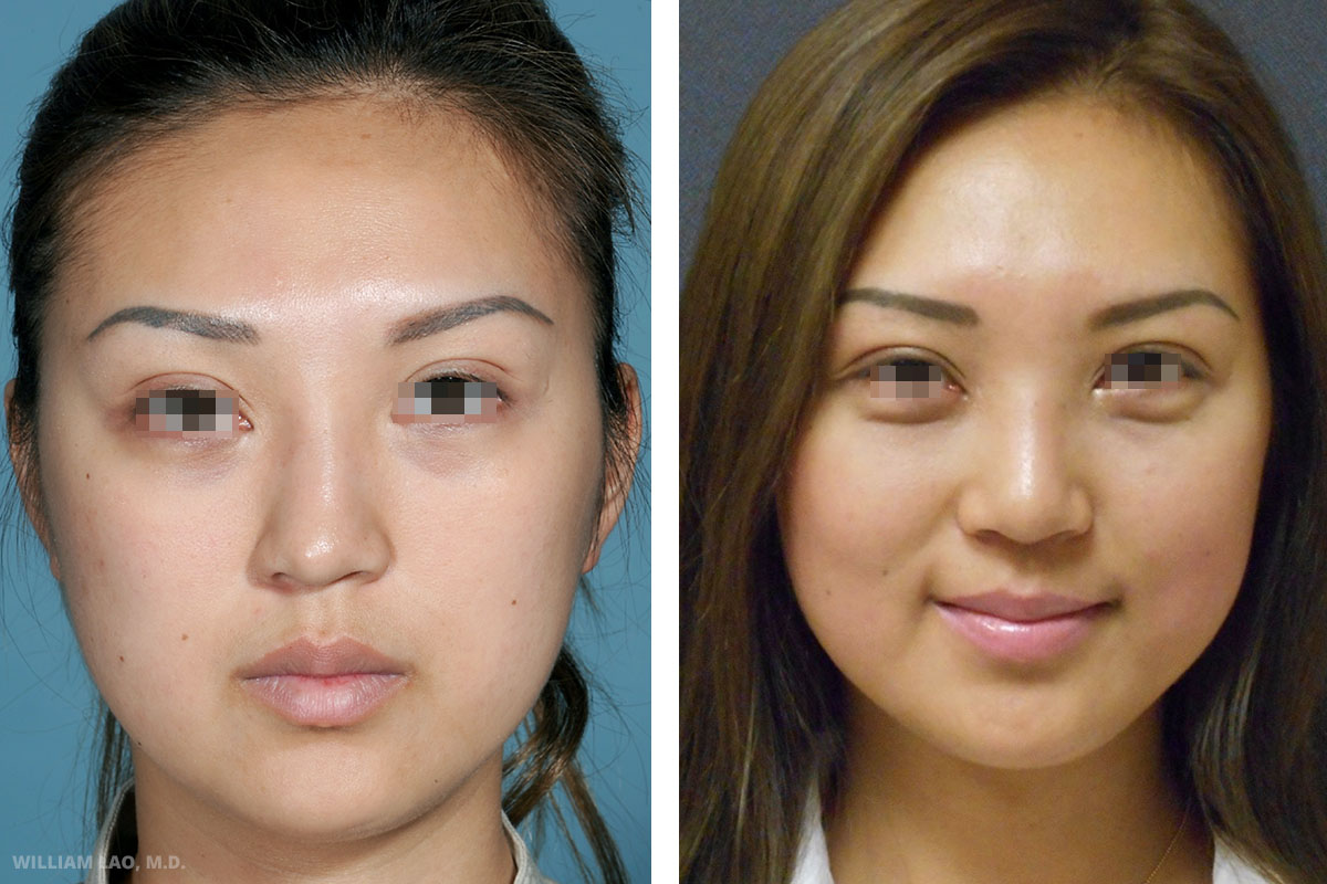S, 27, Asian   S works as a real estate agent in New York. She had an unknown substance injected to her nose a few years ago in China. She was told it was hyaluronic acid but it actually never went away and actually grew bigger with time according to her. Rhinoplasty was done to remove the foreign body and straighten her nose. Autologous cartilage was also used to increase the tip projection.    VIEW STORY