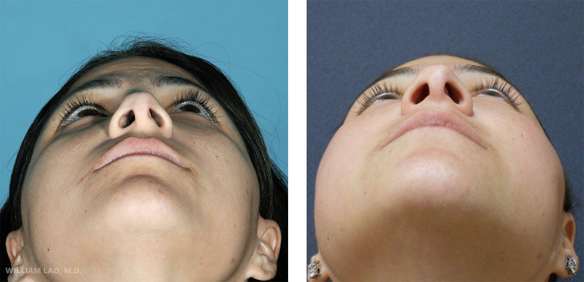 B, 33, Hispanic   B also had a rhinoplasty done in Colombia a few years ago. However, she was not satisfied with the amount of correct and also she was left with a deviated septum. A closed rhinoplasty was done to correct this defect without any scars on the outside skin.    VIEW STORY