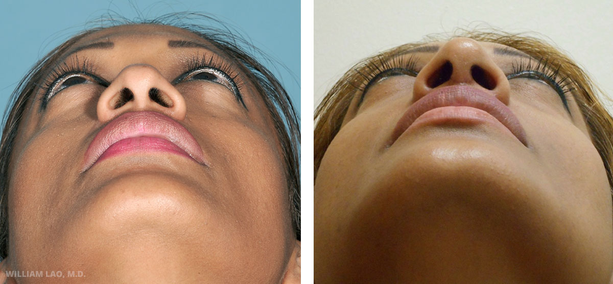 D, 41, Indian   D did not like the hook look of her nasal tip. She also wanted her tip to be more projected at the same time. Rhinoplasty surgery was done to increase the projection of her tip and improve the hooking tip. The changes are subtle but noticeable and natural.    VIEW STORY