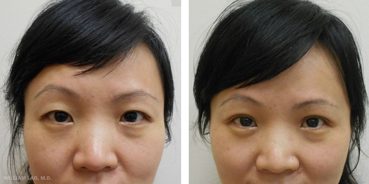 R, 37, Asian    R is a 37 year old lady from Flushing. She had prominent single fold eyelids, brow asymmetry and a widen eye distance. Only double eyelid surgery was performed since she was not interested in correcting her brow position and having a medial canthoplasty.     VIEW STORY