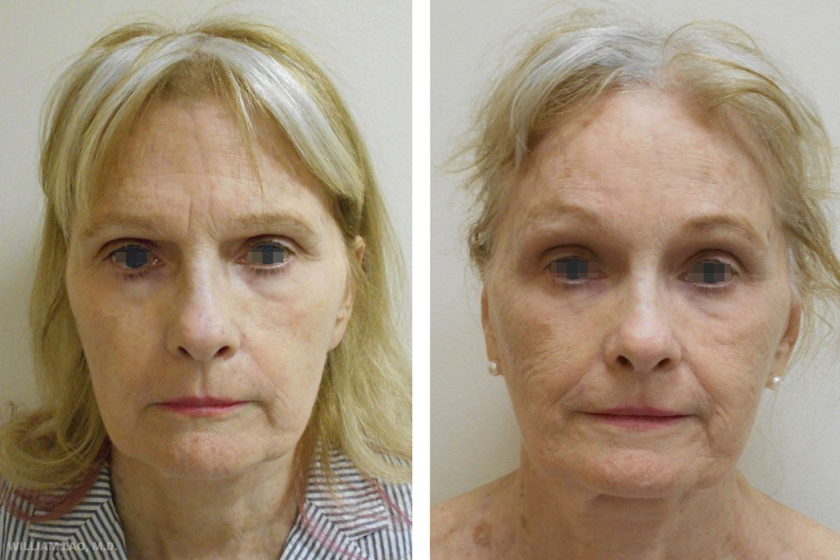 J, 67, Caucasian    J came in with a chief complaint of droopy brow and wrinkled forehead. She would like to get rid of the heavy brow appearance with minimal scar. Endoscopic forehead lift was done to lift her brow and also rid of the glabella wrinkles.     VIEW STORY
