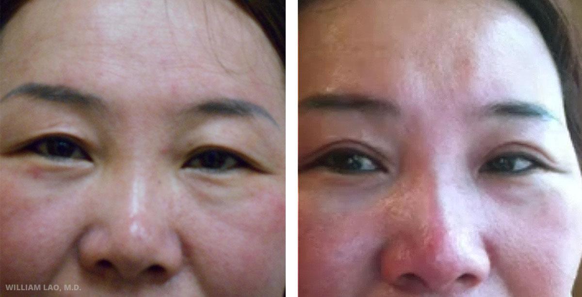 M,40 歲,亞裔   M小姐是一位來自中國的40歲女性。她年輕時有雙眼皮,但隨著年紀增長,皮膚漸漸下垂且雙眼皮消失了。上眼皮手術讓她找回了雙眼皮。手術僅需局部麻醉且在30分鐘內完成。   瞭解更多
