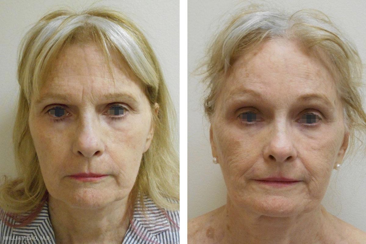 J,67 歲,白人   J小姐帶著眉毛下垂及前額皺紋等問題來求診,她希望擺脫看起來沉重的眉毛,但不想留下明顯的疤痕。使用了內視鏡上額拉提手術來拉提她的眉毛並去除她的眉間皺紋。   瞭解更多