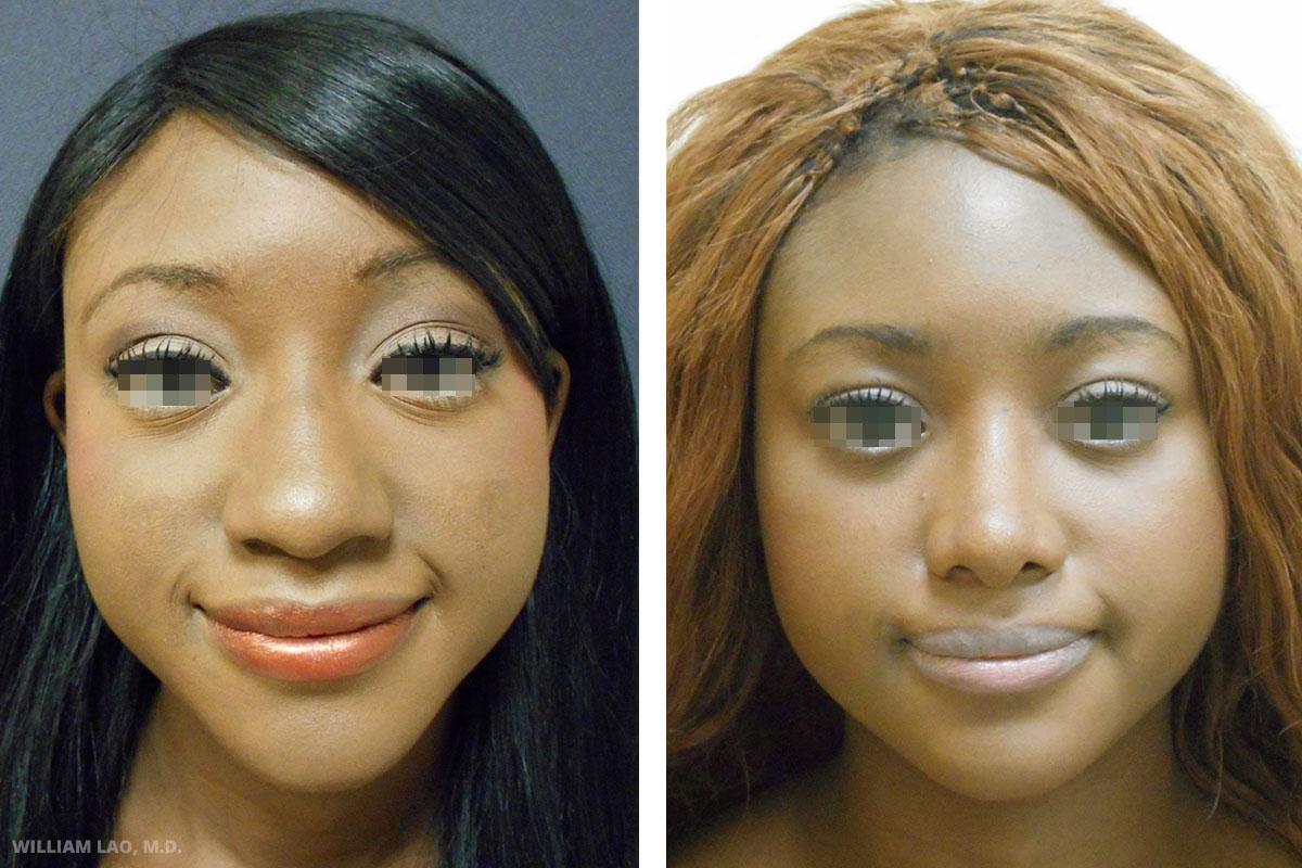 E,23 歲,非裔   E是一位23歲的醫學院學生。從迦納來到紐約求學。她非常在乎山根的突起,同時也不喜歡圓扁的鼻頭。諮詢過後,手術縮小山根的突起並在縮小圓形鼻尖的同時使用自體軟骨墊高鼻子。   瞭解更多
