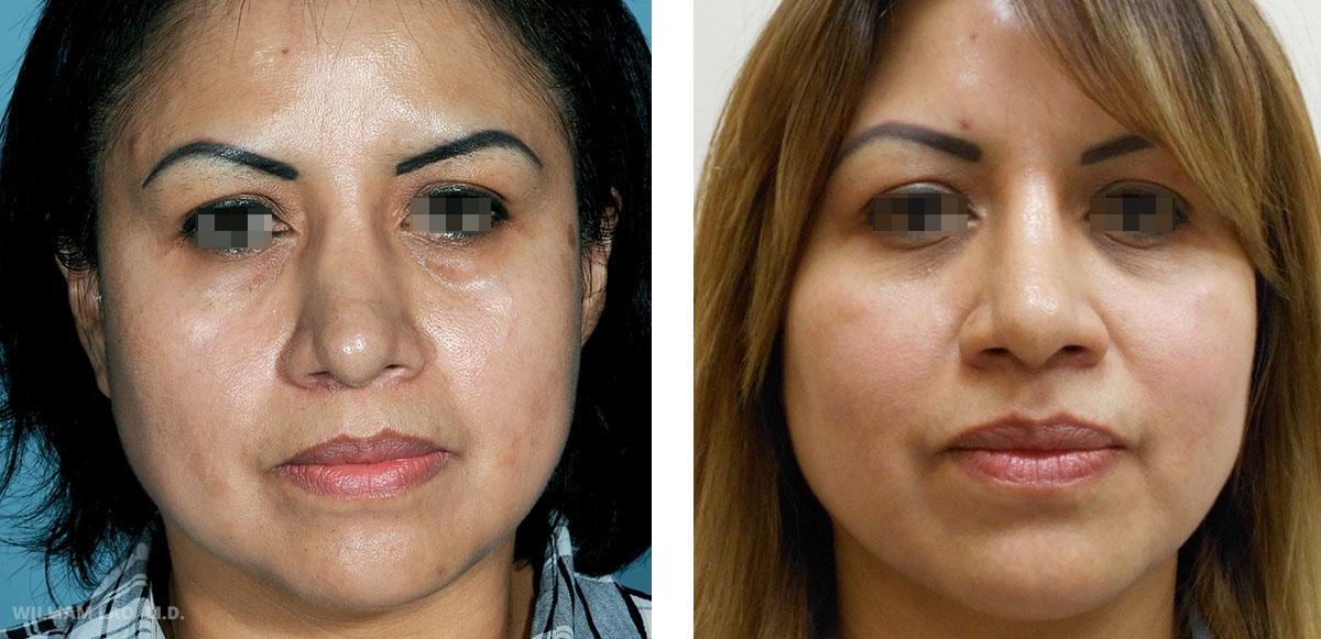 C,41 歲,西班牙裔   C幾年前曾在哥倫比亞做過整鼻手術縮小鼻子尺寸。然而手術不夠完美,最後造成鼻子中間明顯的凹陷,鼻骨邊緣也清晰可見。最後以非開放式方法進行修正手術來矯正了這個缺陷。現在她再度擁有正常面貌,且鼻子看起來非常自然。   瞭解更多
