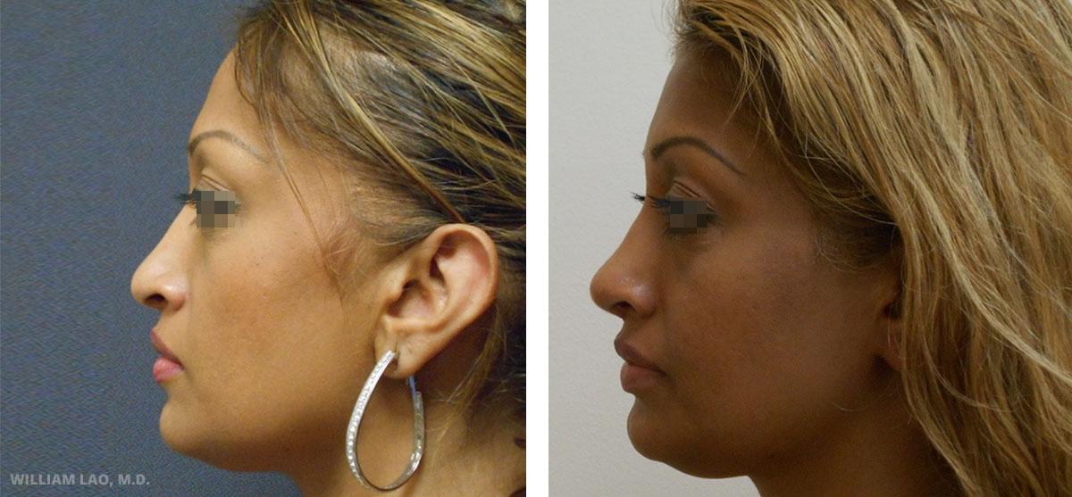 D,41 歲,印度裔   D不喜歡她像鈎子的鼻頭,同時也希望自己的鼻頭能更挺一點。手術後鼻頭墊高且不再下塌。小小的改變,但效果明顯且自然。   瞭解更多