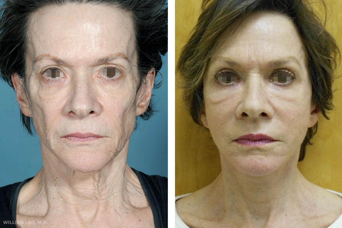 R,67 歲,白人   R是一位非常可愛的67歲女性。她與丈夫一起在曼哈頓經營郵輪觀光事業。由於長期在甲板上受到陽光曝曬及強風吹拂,臉部老化情況甚於同齡女性。也因節食及運動而減了不少體重。她對手術的結果欣喜若狂,看起來至少年輕了20歲。臉頰飽滿,臉部細紋及頸紋也不見蹤影。她不久後更要去進行了下眼瞼手術。   瞭解更多