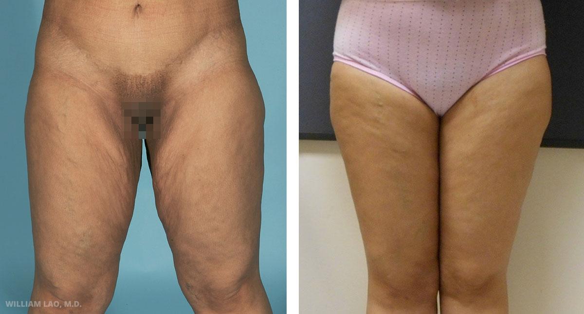 T,35 歲,西班牙裔   T在幾年前透過大幅減重手術減掉超過100磅的體重。此外她也在一年前動了腹部拉皮及上臂拉提手術以雕塑身體曲線。現在,她因大腿內側多餘鬆垮下垂的皮膚而來求診。經由大腿內側拉提手術以切除多餘的皮膚及脂肪。手術切口也隱藏得宜。請看她改善後的大腿曲線及緊實程度。她很高興,現在她又穿得下緊身褲了。   瞭解更多