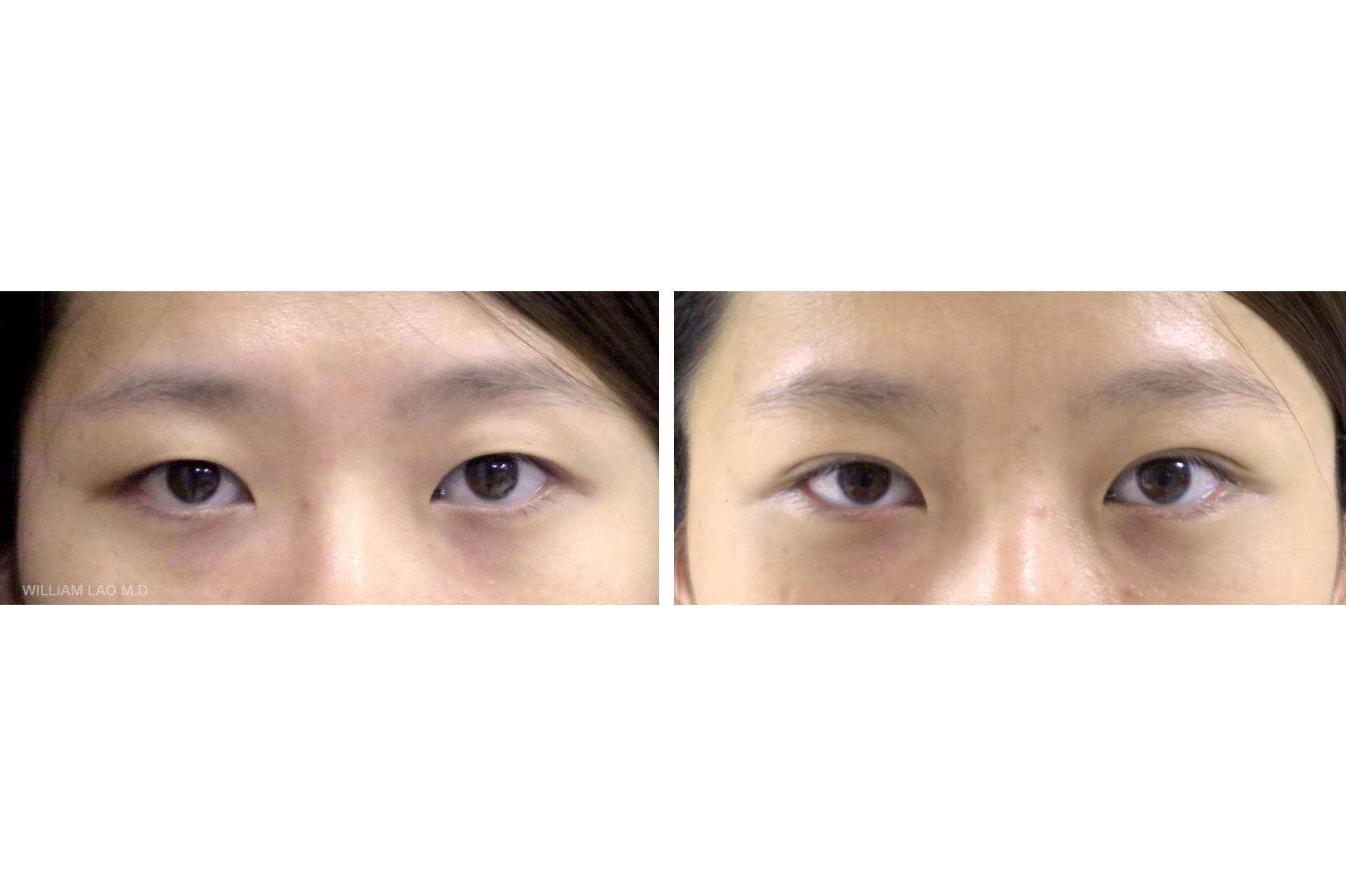 H,25 歲,亞裔   H 從以前就一直靠著眼皮貼膠帶來做出雙眼皮的效果,但是貼久了皮就越來越鬆,到後來也越來越難貼。 她希望有更一勞永逸的方法和不要太寬自然的雙眼皮。 進行簡單的手術後,她再也不用每天和膠帶奮鬥了!   瞭解更多