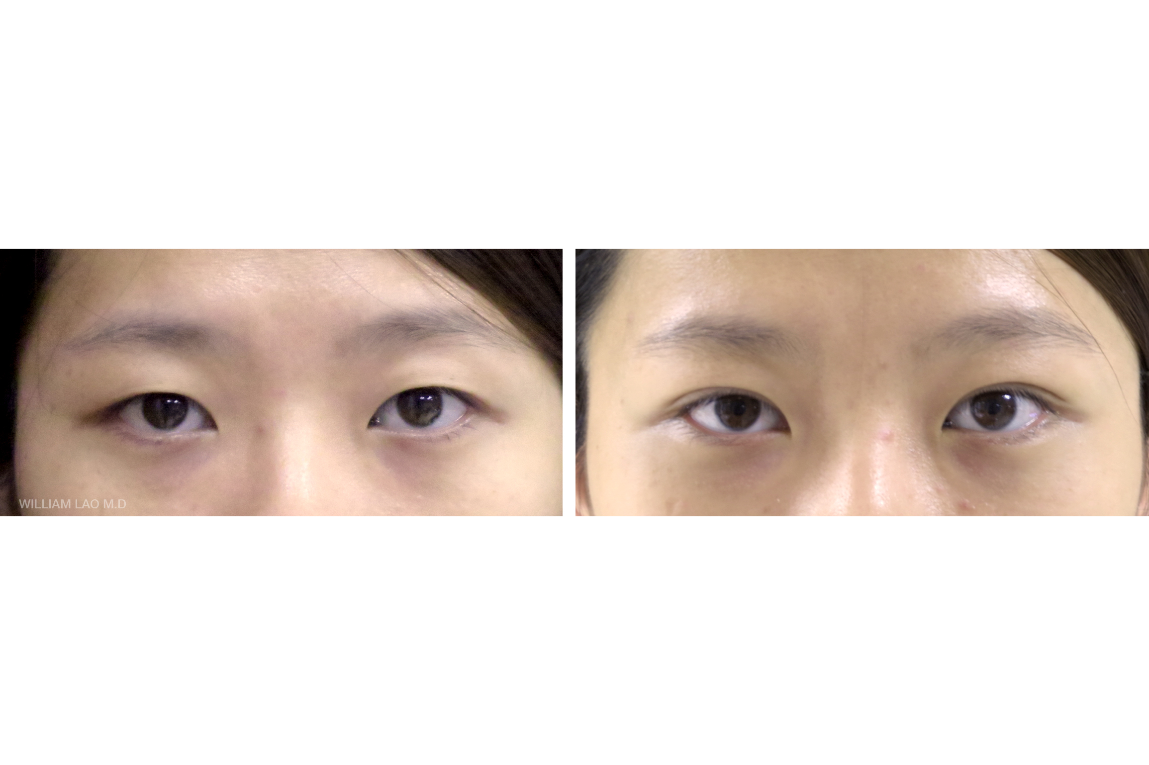 H, 25, Asian   H used to use eyelid tapes to create the double fold. The skin looses its elasticity after a while and she would like to have a more permanent solution. After a simple surgery, H no longer needs to use the tape anymore.    VIEW STORY
