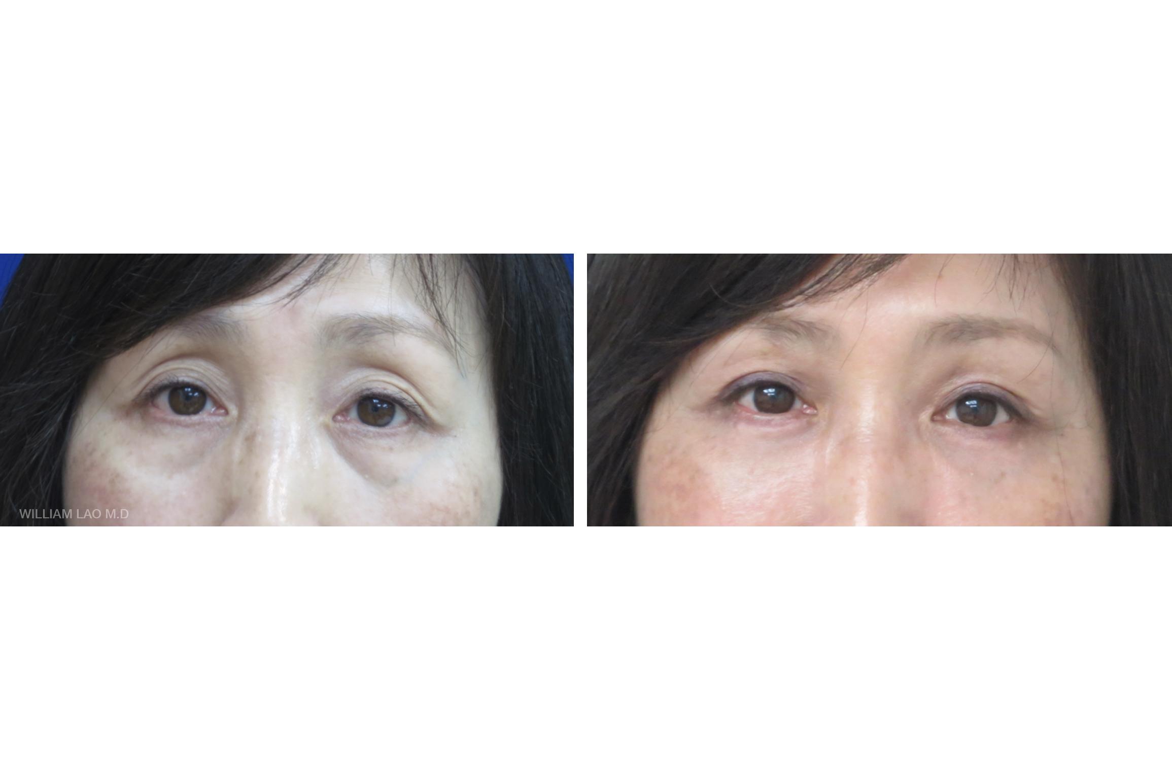 H,55 歲,亞裔   H小姐從年輕時就有多層的上眼皮,後來因為年紀大了加上眼眶脂肪流失,多層的眼皮更明顯,加上眼袋的形成讓整個人顯得更蒼老憔悴。 進行上下眼皮手術後,兩眼突出的眼袋和多餘的眼皮都不見了,整個人看起來年輕多了。   瞭解更多