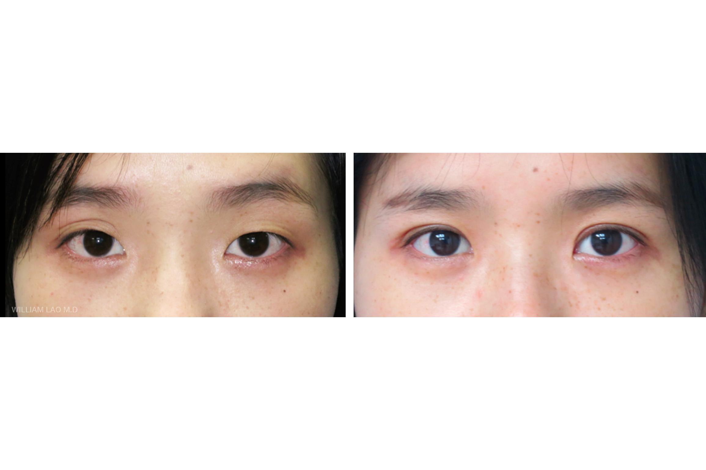 X,28 歲,亞裔   X 從小兩眼就不對稱。右眼有很多層的皺褶但左眼卻非常的單。進行雙眼皮手術後,右眼多層的皺褶變得只有雙眼皮了,兩眼也比以前對稱多了。   瞭解更多