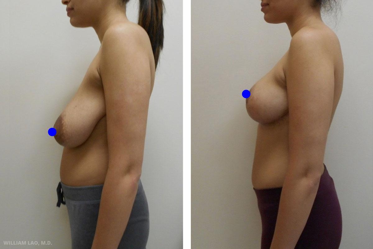 A,20 歲,白人   A是一位20歲的年輕母親。大約在一年前產下第一個孩子。懷孕前她的胸部是D罩杯,但在哺乳期間胸部升級成參D罩杯。哺乳結束後卻只剩下又大又鬆垮的胸部和誇張的乳暈,乳頭也垂到腰際。下垂的胸部宛如垂掛的鍊子,必須時時穿著胸罩才能消除此種感覺,令她頗感不耐。她希望恢復產前的堅挺和豐滿。也希望在家無須依賴胸罩來支撐拉提便可以穿著輕薄的夏日洋裝或T恤。經過諮詢和討論後,她選擇不使用任何植入物的簡單提乳手術並盡量保留乳房組織。經過切除多餘皮膚及組織拉提,術後改善明顯,她重新找回自信,也回復20歲該有的胸形。   瞭解更多