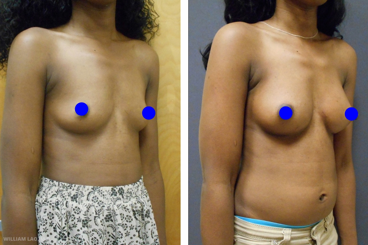 D,30 歲,非裔美國人   D自年輕時便渴望擁有豐滿胸部。她的胸部十分平坦並已在一年前動過隆乳手術,現在希望將B罩杯升級到C罩杯。經由上一次手術的同一個切口植入新的填充物,升級後的胸部尺寸讓她非常滿意。   瞭解更多