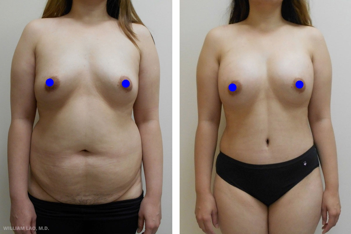 C,30 歲,亞裔  C,30歲,兩名孩子的母親。懷孕後她增加了不少體重且始終無法瘦下來,特別前腹和側腹。她曾動過小尺寸的隆胸手術,現在希望使胸部再大一點。她個子高,骨架又寬,因此大一點的植入物較適合她。了解她的目標後,進行了重點在抽脂的腹部拉皮與腋下乳房植入物交換手術,取出原本的植入物並換成大一點的植入物。她非常滿意手術結果!   瞭解更多