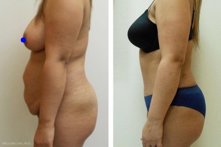 Z,33 歲,西班牙裔   Z是在幾年前生下一對雙胞胎的33歲母親。自此之後她便因造成的贅肉飽受身心上的困擾。她已回復產前的體重,但無論如何努力,腹部都無法回復產前的狀態。而最使她感到困擾的便是層層疊疊的肚子及多重妊娠紋。此外她也對左腋下的副乳組織及輕微肚臍疝氣感到煩惱。諮詢後,做了肚皮拉皮,修復肚臍疝氣也同時移除左邊腋下的副乳。她十分滿意術後結果,她的手術切口隱藏得非常理想,下腹部的妊娠紋也都消除了。   瞭解更多