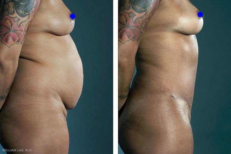 P,34 歲,西班牙裔   P育有兩名子女。她希望恢復產前的身材並再次穿上比基尼。我為她設計了抽脂及切口在下比基尼線的腹部拉皮。她非常滿意手術結果,並於術後立刻去海灘做日光浴!   瞭解更多