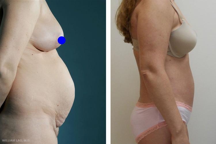 N,42 歲,白人   N是一位非常親切的42歲女性。她來找我的主要原因是自產後就凸出的肚子。她育有三名子女。自生完最後一個孩子後肚子便再也沒縮回去過。事隔多年,她的肚子還像懷孕六個月的模樣。檢查後發現,她其實並無太多皮下脂肪,造成她大肚子的主要原因是多次生產造成的肌肉鬆弛。為得到最佳的手術結果,只做了輕微的抽脂並把重點放在緊實鬆散的肌肉。   瞭解更多